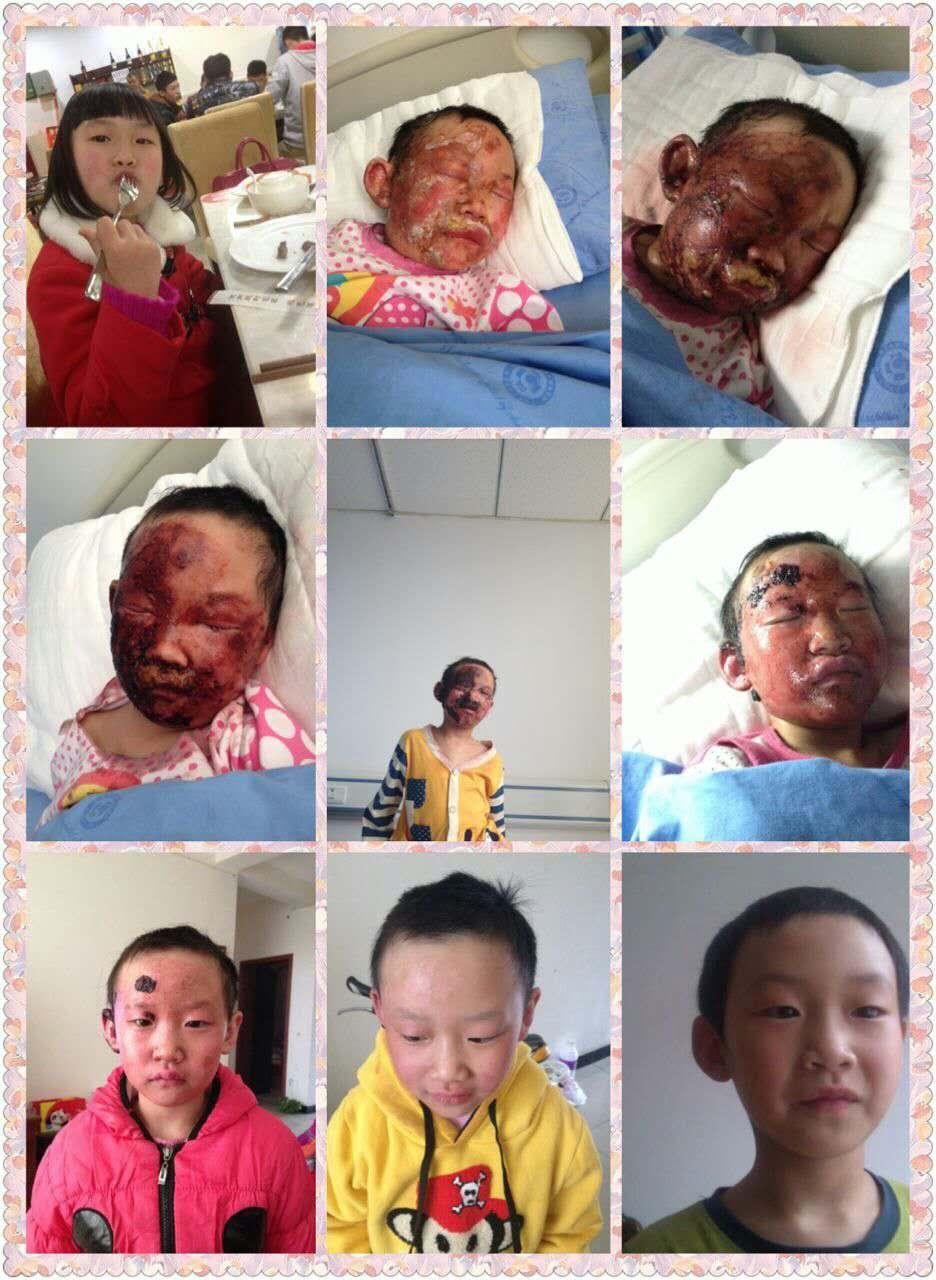 病例六 李女士,57岁,辽宁葫芦岛兴城市围屏乡往户村 病情:肠梗阻术后
